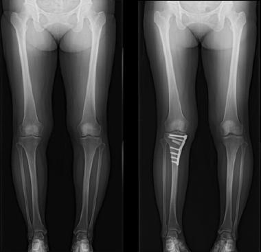 脛骨高位骨切り術
