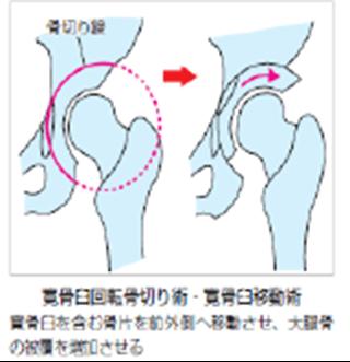 大腿骨寛骨臼インピンジメント