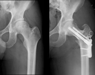 大腿骨頭回転骨切術、大腿骨彎曲内反骨切術
