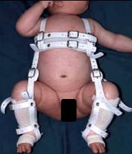 発育性股関節形成不全に対する装具治療(リーメンビューゲル)